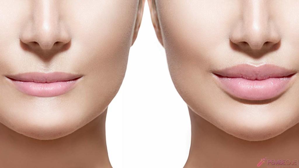 Dudak dolgusu ile dudak estetiği