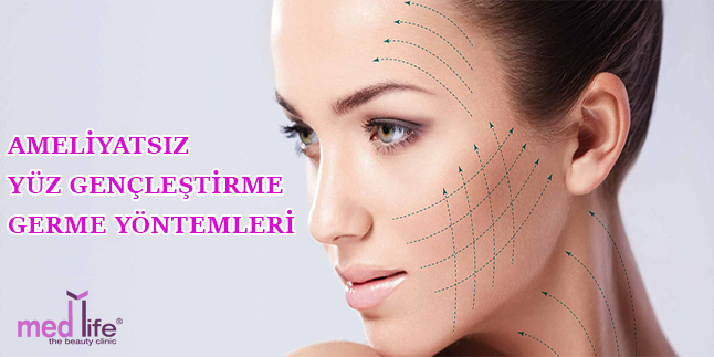 Ameliyatsız yüz germe veya iple yüz asma ile yüz gençleştirme